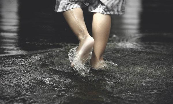 """การดูแลสุขภาพขา จากสารพัน """"เชื้อโรคจิ๋วในหน้าฝน"""""""